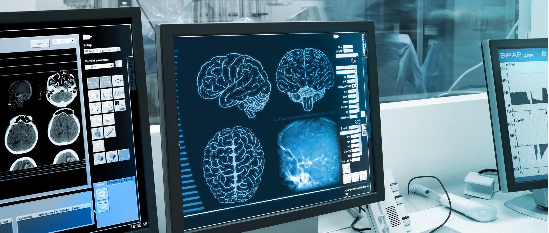 brain scan monitor